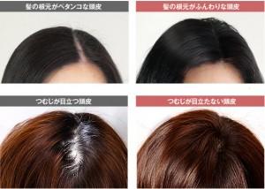 30代女性抜け毛改善
